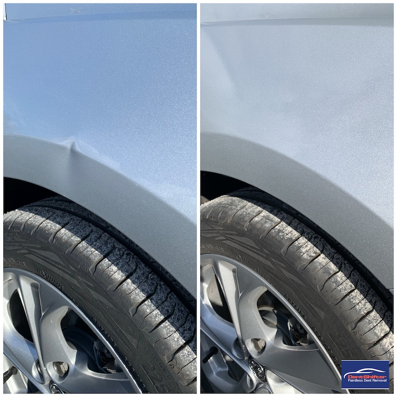 Dent Removal   Paintless Dent Removal